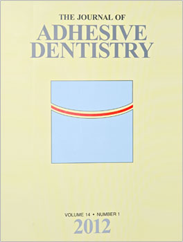 BONDING LITHIUM DISILICATE CERAMIC TO FEATHER-EDGE TOOTH PREPARATIONS: A MINIMALLY INVASIVE TREATMENT CONCEPT