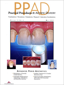 REHABILITATION OF SEVERELY ERODED DENTITION UTILIZING ALL-CERAMIC RESTORATIONS.